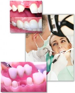 Your guide to dental bridges