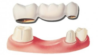 The dental bridge procedure