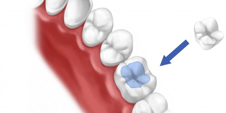 All about dental fillings<br> and inlays/onlays