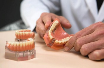 Risks and complications associated with dental implants
