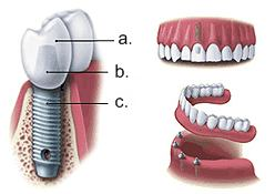 a.) Crown b.) Space c.) Implant