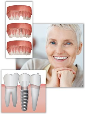 Introduction to teeth replacement with implants
