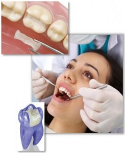 Your guide to dental fillings and inlays