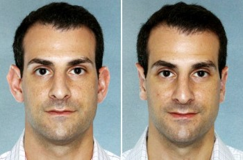 Before and after photos of ear correction surgery patients