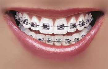 1. Fixed braces