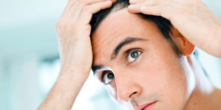 All about hair loss