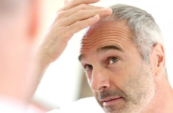 All about hair transplant surgery