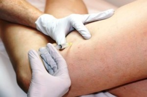 Injection treatment of smaller varicose veins