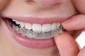 Techniques and options for teeth straightening of dental braces