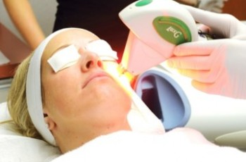 IPL treatment for small veins
