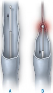 Laser and radiofrequency surgery