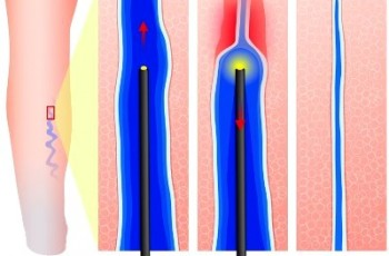 Radiofrequency and laser treatment
