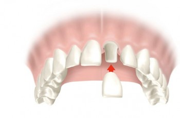 All about porcelain crowns (dental crowns)