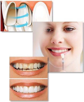 All about porcelain veneers (dental veneers/tooth veneers)