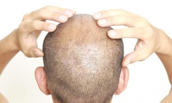 Time after a hair transplant