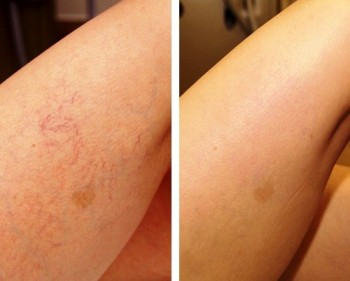 Potential risks and side effects of sclerotherapy