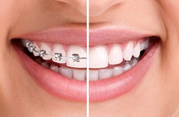 Introduction to orthodontic treatment