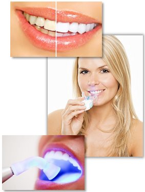 The interest in tooth whitening has exploded in recent years