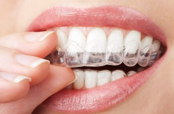 Teeth whitening at home or at a clinic?