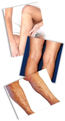 Varicose veins are classified on a six-point scale