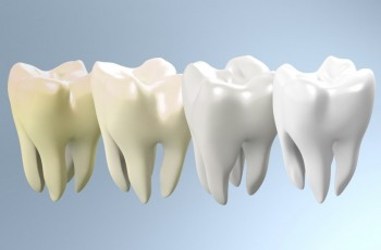 Introduction to tooth whitening