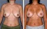 520cc-anatomical-implants