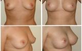 anatomical-breastimplants-mentor