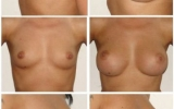 anatomical-implants-front