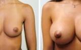 breast-enlargement11