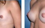 breast-enlargement26
