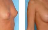 breast-enlargement30