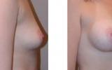 breast-implants16