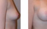 breast-implants17