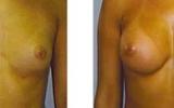 breast-implants18