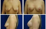 breast-implants-breast-lift-33