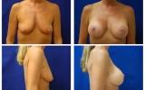 breast-implants-breast-lift-b-d