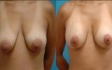 breast-lift-breast-implants