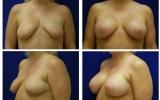 breast-implants-breast-lift-43