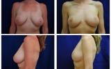 breast-lift-27