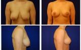 breast-lift-28