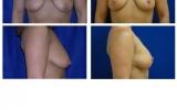 breast-lift-44
