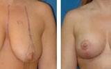 breast-lift-7