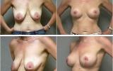 breast-lift-mastopexy1