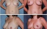breast-lift-mastopexy12