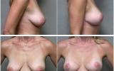 breast-lift-mastopexy2