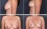 breast-lift-mastopexy4