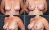 breast-lift-mastopexy5