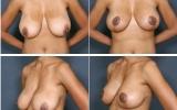 breast-lift-mastopexy7