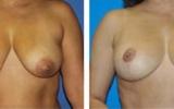 breast-uplift-15