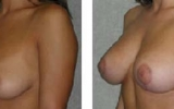 breast-uplift-20